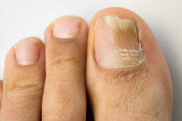 Listerine lucha hongos en las uñas